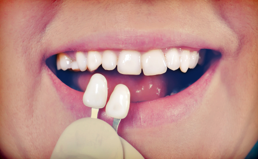 dca-blog_article-46_veneers-and-dental-health